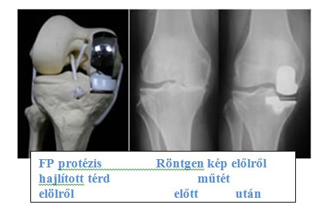 a térd kenőcsének arthroso-arthritis fekete hangya kapszulák ízületi fájdalmakhoz